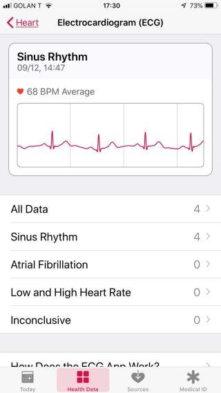 ECG Sinus Rhythm: 68 BPM Avg.