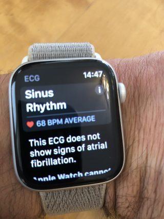ECG Sinus Rhythm Result - no fibrillation