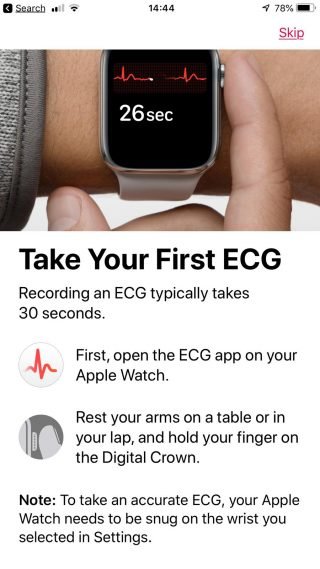 First ECG on Apple Watch