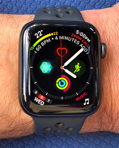 my-apple-watch